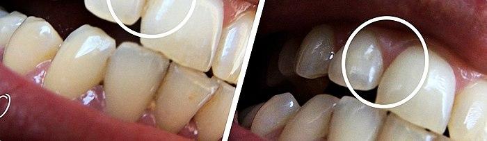 Weiße Zähne, gesundes Zahnfleisch, all dies fiel mir sehr einfach. Sie werden überrascht sein - was ist das Geheimnis? Und es ist kein Geheimnis hier - Bürste gewechselt und VOILA, mit einem HAPICA ICH GLÜCKLICH!