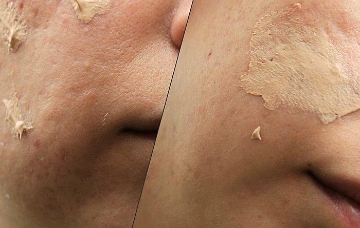 Για μένα είναι περισσότερο φροντίδα, και δεν τον τόνο! Ήταν ιδανικό για το λιπαρό ιδιόρρυθμη του δέρματος.