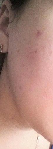 Les soins de la peau de l'acné. Матирует bien. Ne sent pas bon.