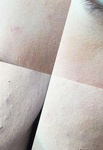 Meu mais favorito devoluções. Vou usá-lo, se quiser parecer 10 anos mais velho! + Fotos no problema de pele.