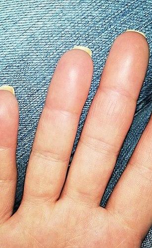 Docela strašidelná alergie na lék tnl professional! Ne radí!