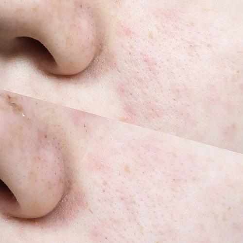 Koreaanse huid-masker. Als de facial wash is geweldig, als een masker – een complete mislukking.