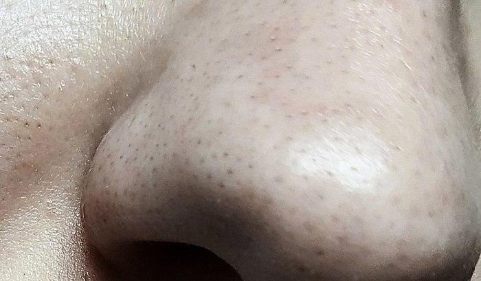 Lisää vain vesi, ja mustia pisteitä alkaa keventää ● Cool suunnittelu, kunnollinen tuote, joka toimii ● Miten entsyymi puuteri HELL-HUOKOSTEN PUHDISTAA ihon ongelmia?