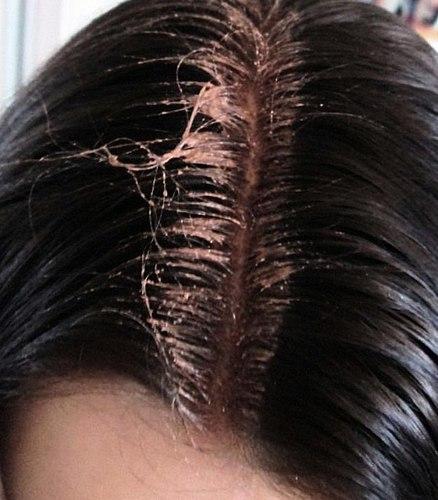 זה שיער או מוצר חדש נשק כימי!? שלי צריכה להבין. לרדוף אחרי החלום או להישאר עם השיער שלך אחרי זה