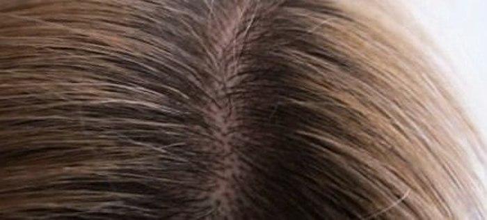 =Megállt a hamarosan vette észre - a haja elkezdett nőni, nagyon gyorsan!= Milyen gyorsan lehet a hajad otthon. Erősíti a root? Ha SULSENA a paszta, a haj? Van haja színe? SULSENA ellen pattanások, mitesszerek (akne) az arcomra!