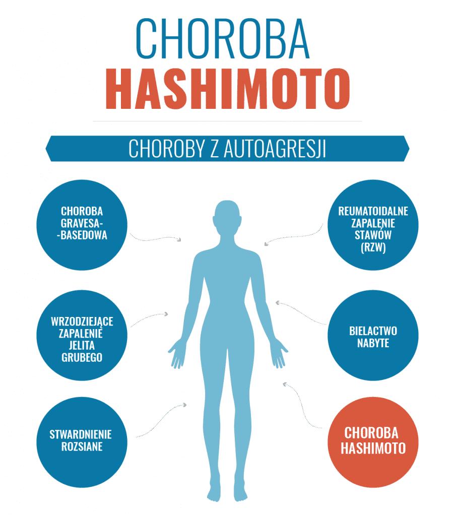 diagnostyka_hashhimoto_1