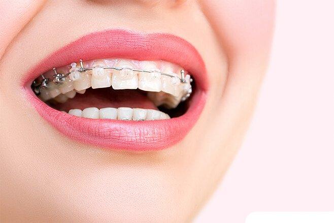 Акцию по установке брекетов проводит стоматология Зууб.рф
