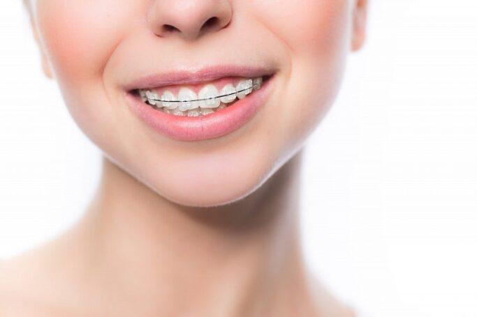 Стоматологический центр «Зууб» приглашает установить сапфировые брекеты за 35 000 рублей
