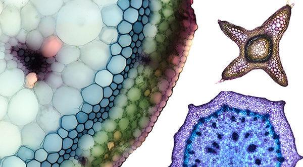 клетки растений под микроскопом