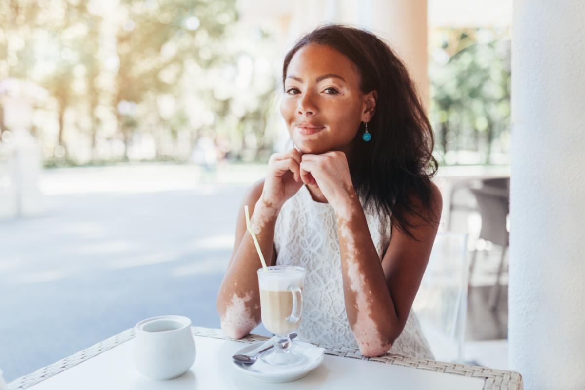 Vitiligo : quels sont les facteurs déclencheurs et comment le traiter ?