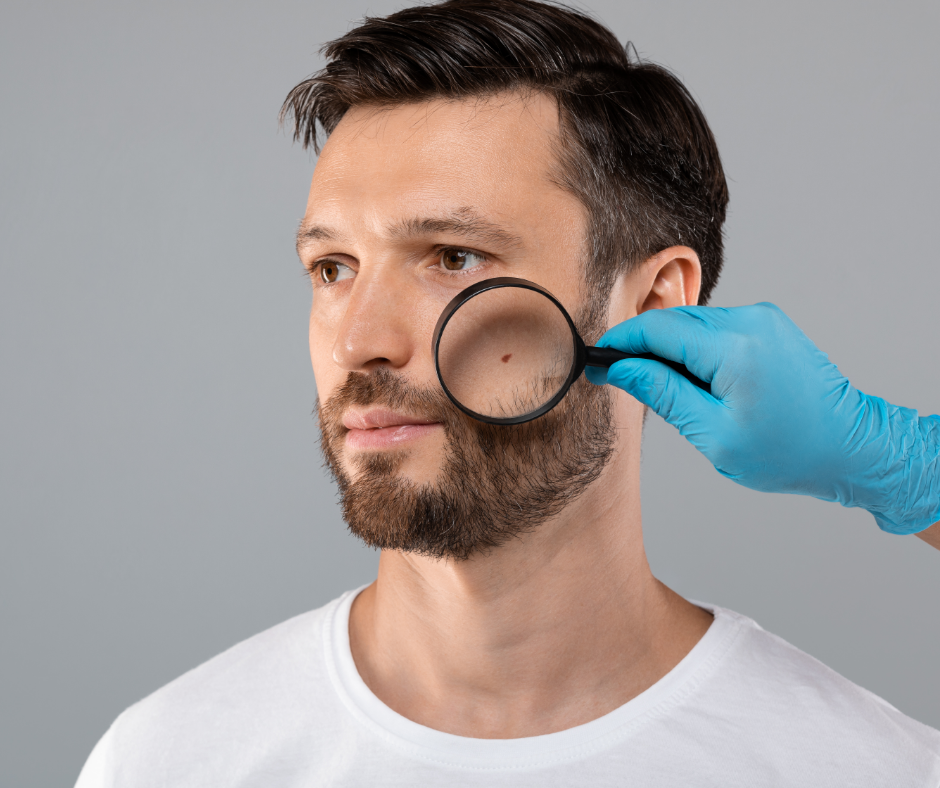 Cancer de la peau : pensez à vous faire dépister régulièrement !
