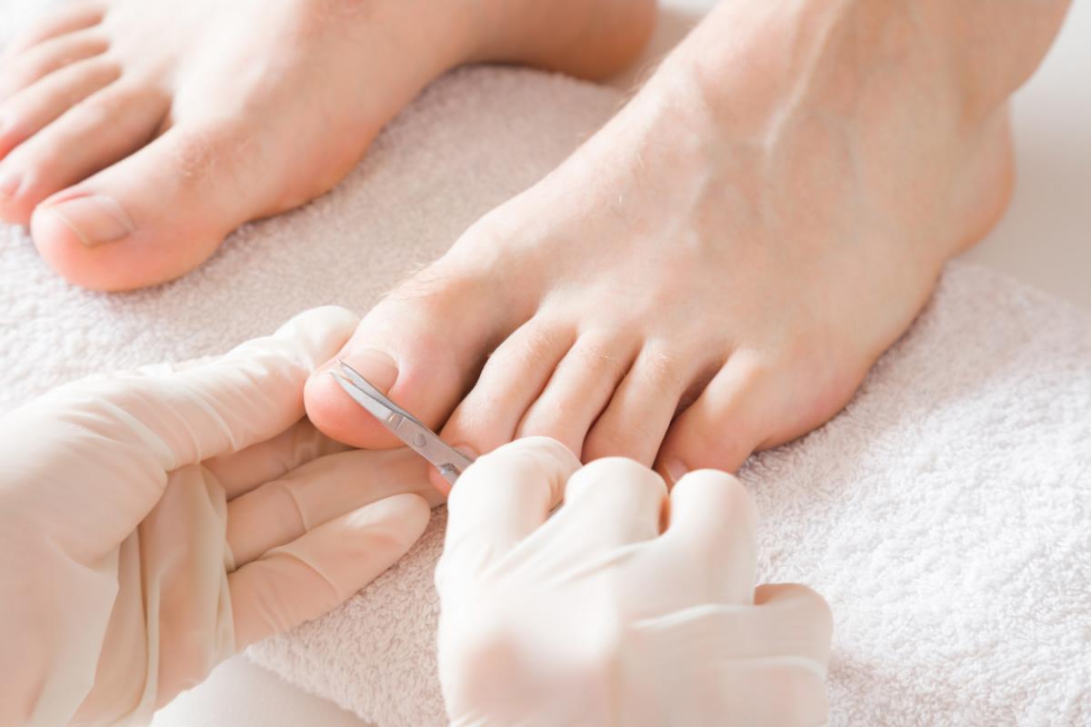 Ongles incarnés : 5 façons de les traiter en douceur