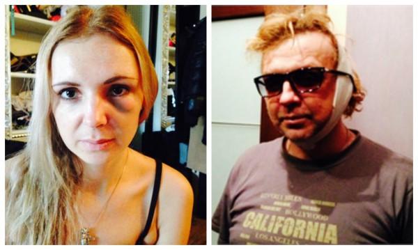Хулиганы жестоко избили Рому Жукова и его жену