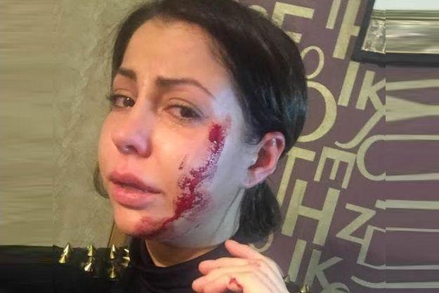 Елену Беркову жестоко избила пьяная женщина